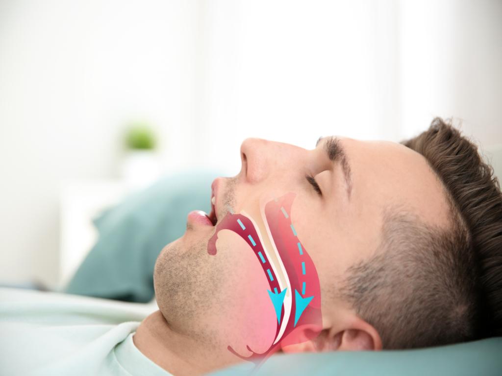 jenis gangguan tidur sleep apnea